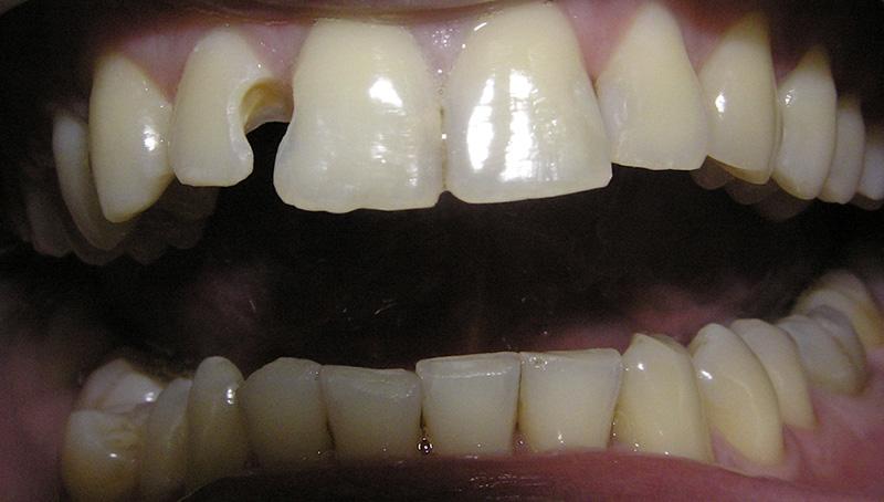 Cazul clinic 3622