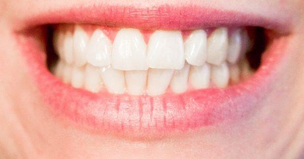 zambet cu dinti frumosi