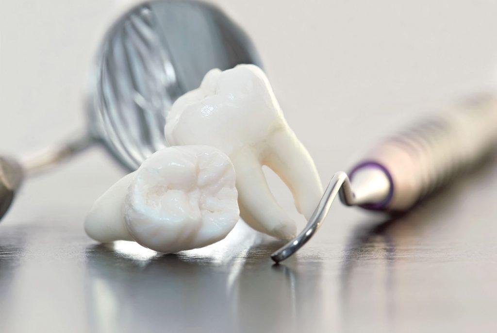 detartrajul dentar